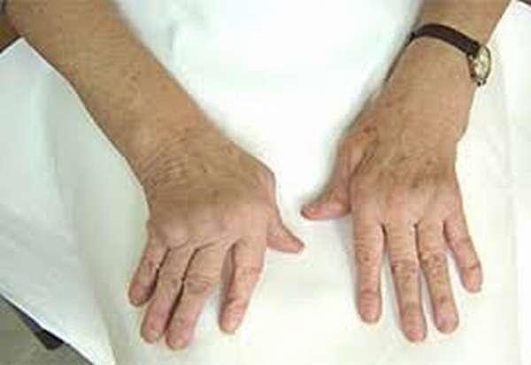 Когда пройдет артрит если не лечить фото
