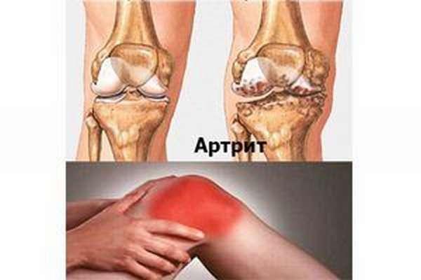 Лечение артрита коленного сустава антибиотиками