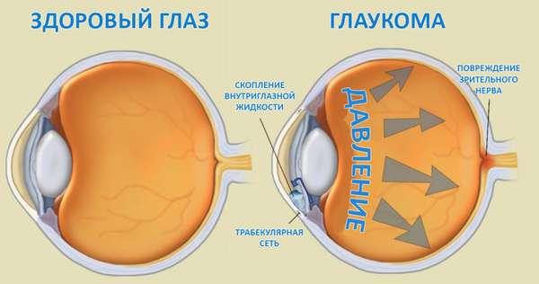 Питание при глаукоме: какая диета необходима, витамины, что нужно.